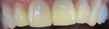 Implant-Crowns-Bleachings-After-Image