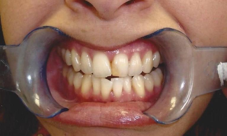 Bleaching-and-Composite-Fillings-Before-Image